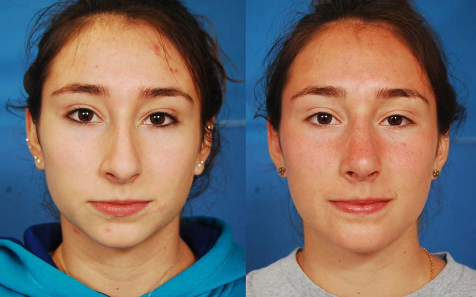 Ching augmentation by dr. Michael Reilly